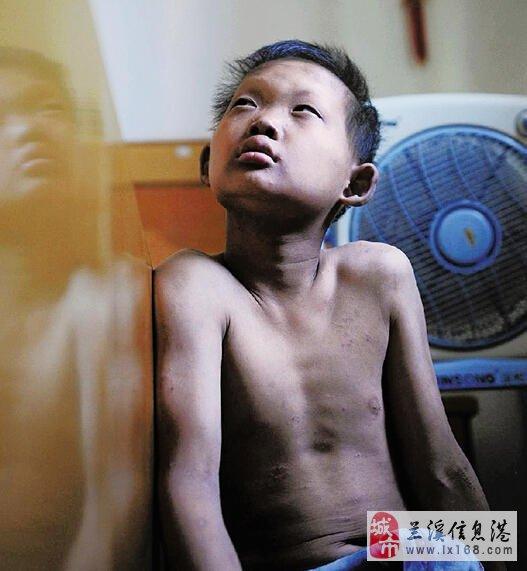 兰溪11岁男孩天生不能出汗 每到夏日备受煎熬图片
