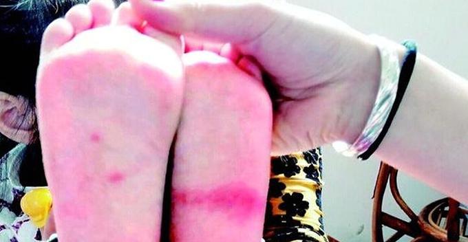 3岁的小姑娘从幼儿园回家后喊脚疼,称被老师用牙签扎过。医院诊断显示,小姑娘脚底有两个针尖大小的伤口。今日,位于洪山区书城路的该家幼儿园回应,老师没用任何东西扎过小姑娘的脚,怀疑是蚊子所咬。 今日上午9时许,楚天都市报记者到达小姑娘小妍家。脱掉小妍的鞋子和袜子之后记者看到,左脚底有一条清晰的红印,右脚脚底有两个红包。小妍告诉记者,脚还疼,右脚是在幼儿园调皮被李老师用牙签扎的,左脚是棍子打的。 在医院26日晚上11时许开具的急诊病历上,体征项写着:右足底见2处针尖大小伤口,左足局部红肿,双足活动正常。在诊