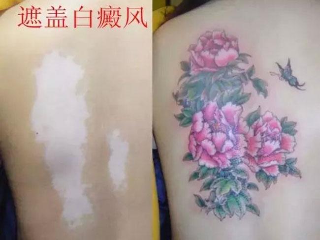 疤痕(烫伤,手术及非手术疤痕),皮肤色斑,胎记,女性妊娠纹,让您重新